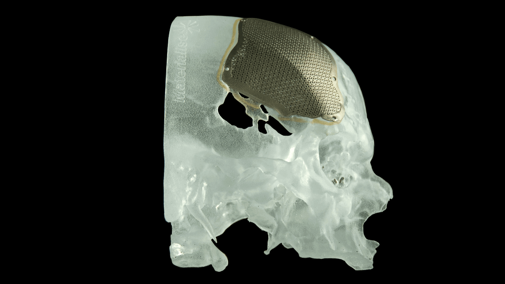 Revolutionizing Facial Reconstructive Surgery with 3D Printing | All3DP