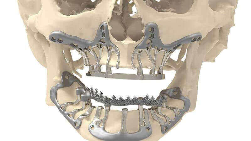 CADSkills Develops 3D Printed Titanium Jaw Implant to Reduce Surgical Time | All3DP