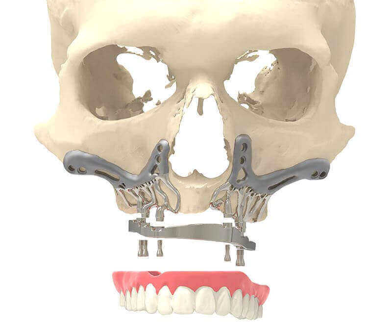 CADSkills Develops 3D Printed Titanium Jaw Implant To