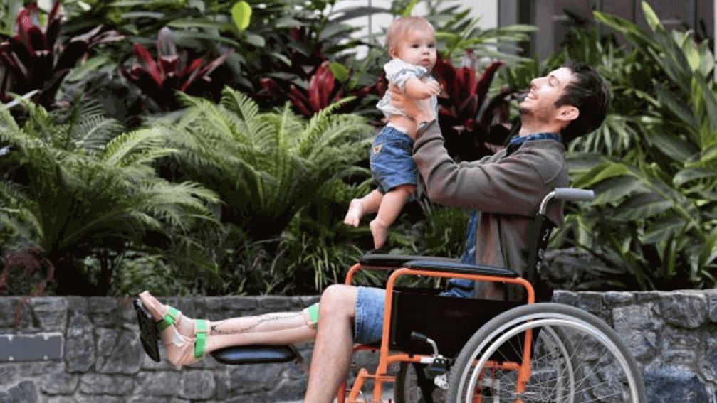 Australian Dad Has World's First 3D Printed Shinbone Transplant | All3DP