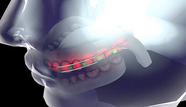 3D Printed Braces with LED Lights and Micro Batteries Save Time and Money | All3DP