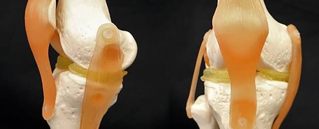 A new cartilage-like hydrogel material could make the job of repairing knees much easier
