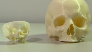 Featured image of 3D Printed Skull Saves Newborn's Life in Perth
