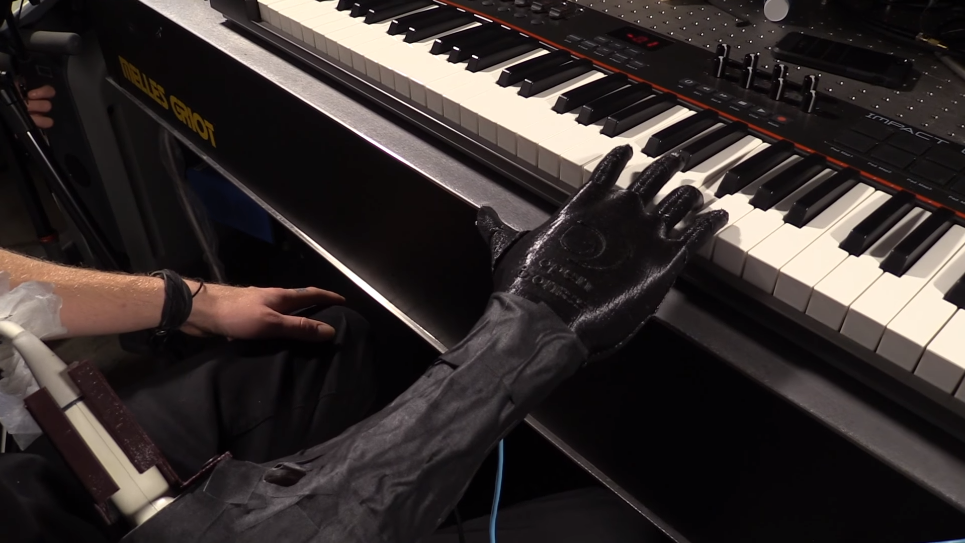 Amputee Musician Tests Luke Skywalker Hand | All3DP