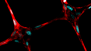 Featured image of Researchers Find New Low-Cost Ways to 3D Print Living Tissues and Organs