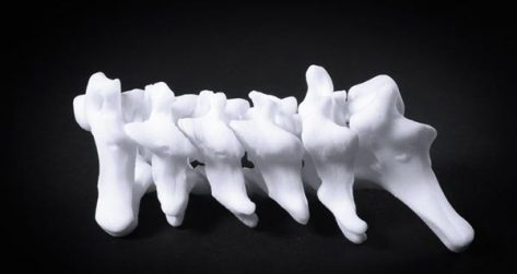 Featured image of 3D Modeling of Scoliosis Offers Non-invasive Diagnostic Options