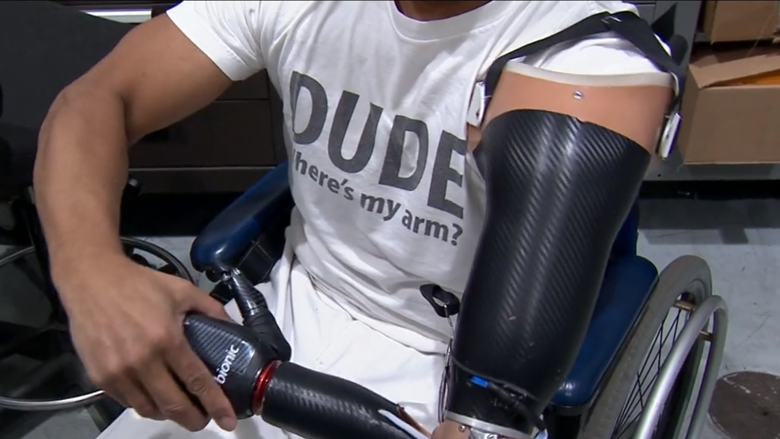Honda Employees 3D Print Prosthetic Arm for Colleague | All3DP