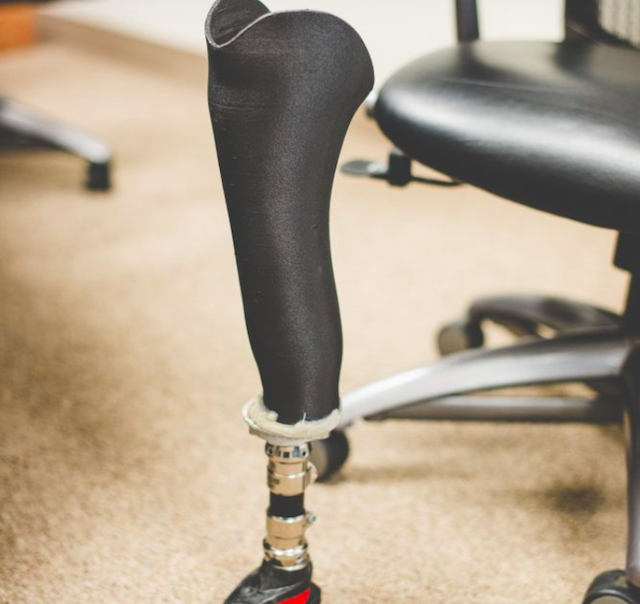 Thermoplastic Carbon Fiber 3D Printed Prosthetic Sockets