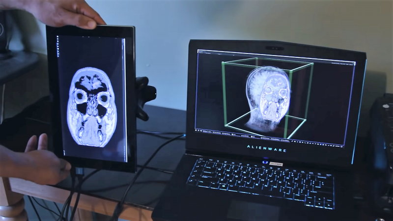 Explore Your MRI Data With a Tablet, Vive Tracker, and a 3D Printed