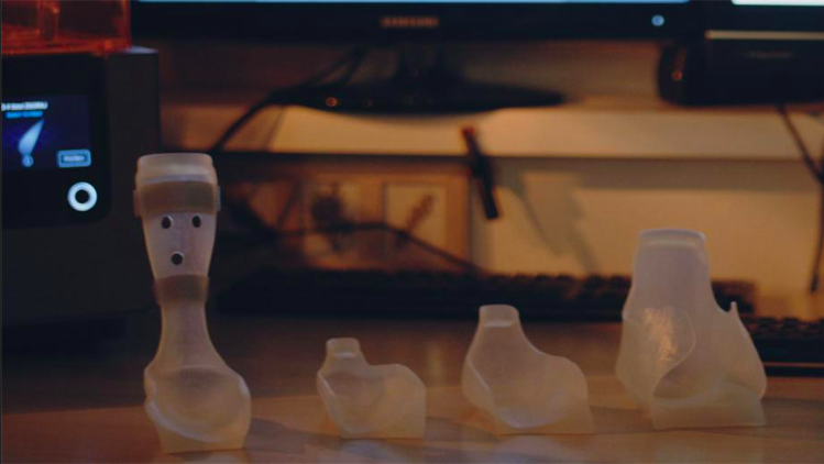 Father 3D Prints Orthoses for his Son, Now Helps Others | All3DP