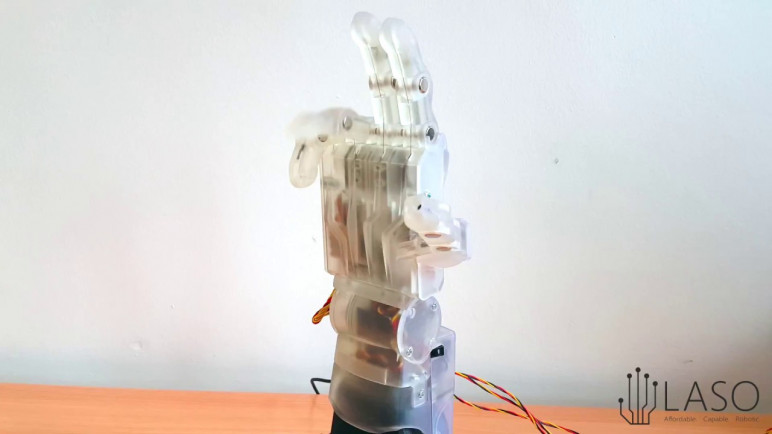 A prototype of Laso's 3D printed prosthetic hand.