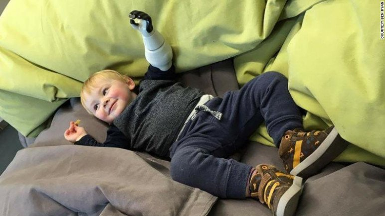 Ryan's son, Sol, with his 3D printed prosthetic.