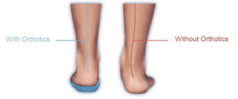 How orthotics can help.