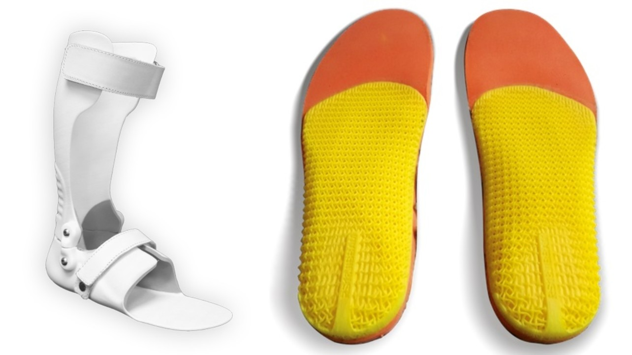 9149b3e723 3D Printed Orthotics – The 5 Most Promising Projects of 2018