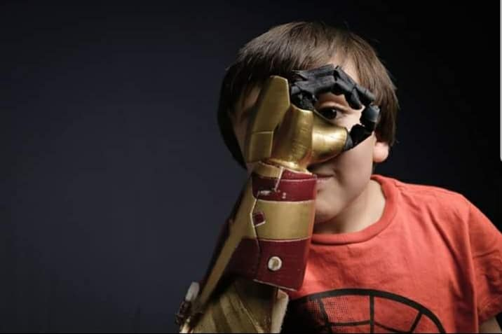 3D printed prosthetics provide affordable alternatives.