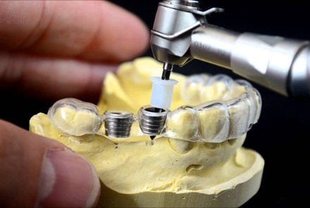 Custom 3D printed surgical guides make dental surgeries incredibly precise.