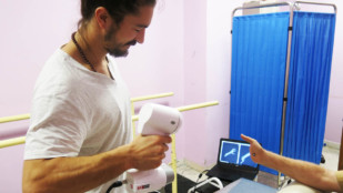 Featured image of Doctors Without Borders Hospital in Jordan 3D Print Prostheses for War Victims