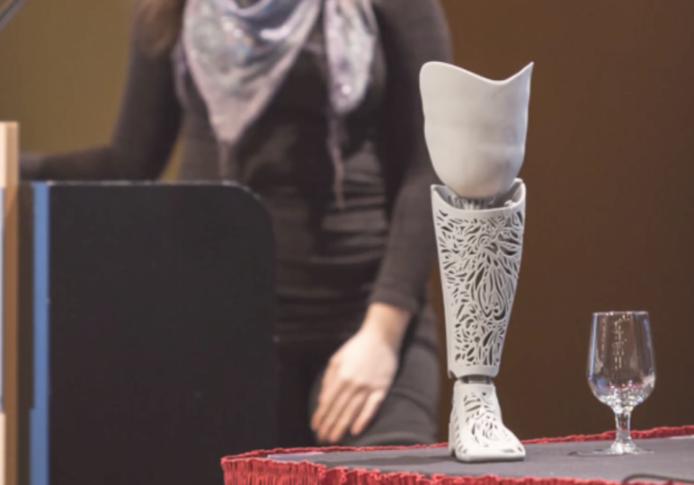 3D Printed prosthetic leg created on just 17 days