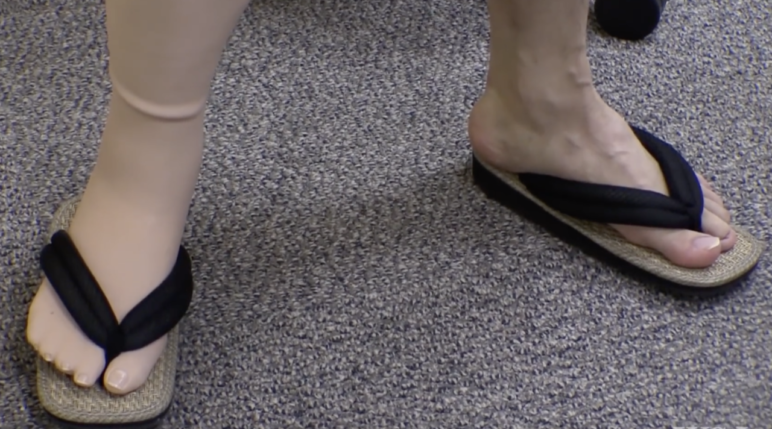 3D printed prosthetic leg compatible with Japanese traditional summer sandals