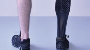 Featured image of 3D Printed Prosthetic Leg – 5 Most Promising Projects