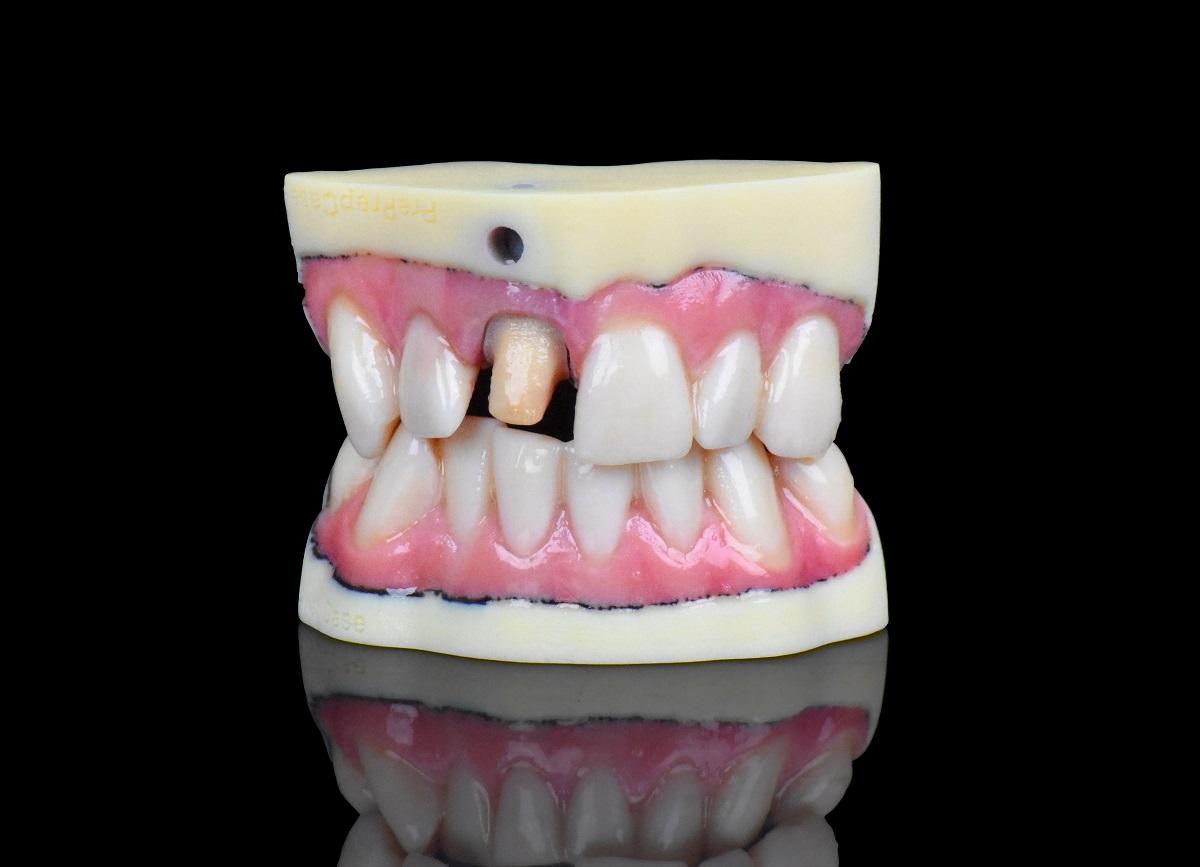 Stratasys Unveils High Resolution J720 Dental 3D Printer