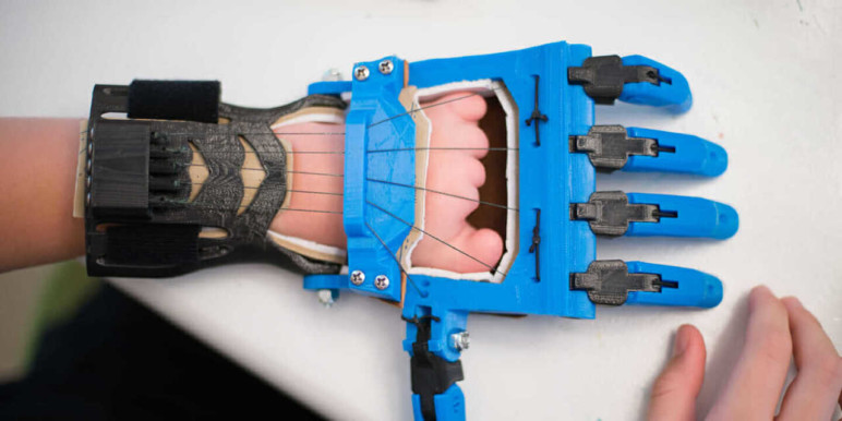 An advanced prosthetic hand.