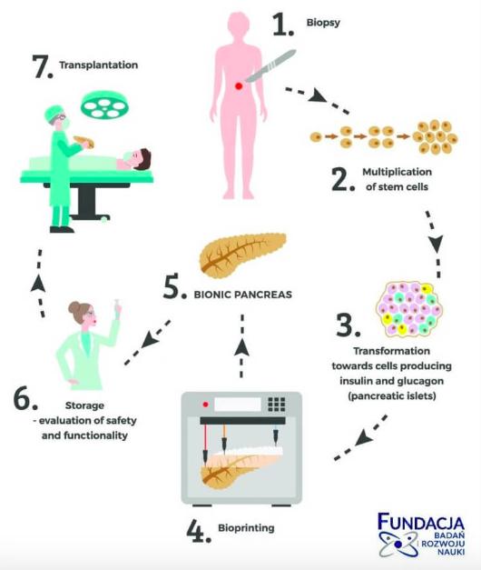 bionic pancreas