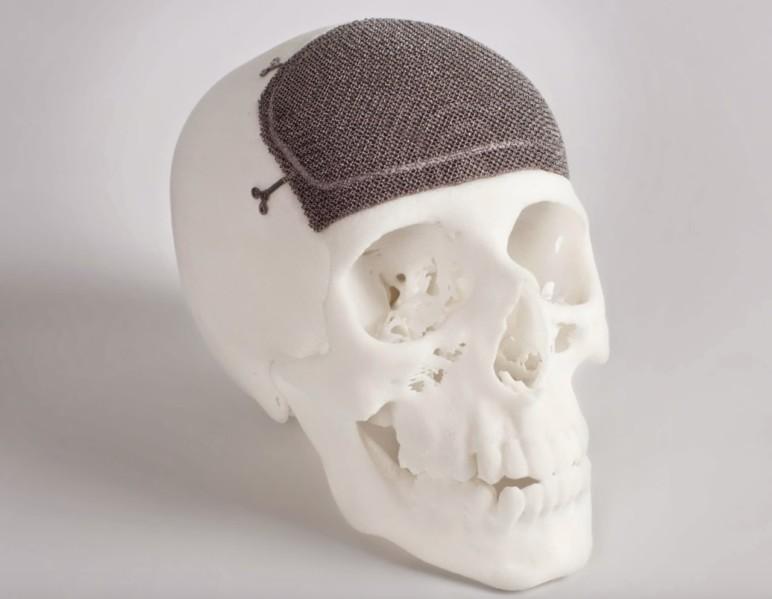 EBM 3D printed skull implant.