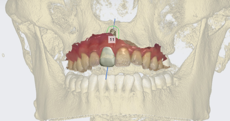 An implant case study using 3D dental scanners.