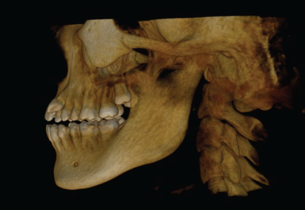 The amount of detail in this CBCT scan is impressive.