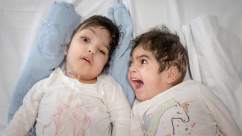 Featured image of Conjoined Twins Separated with Help of 3D Printing