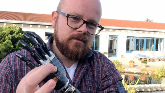 Featured image of This Man's 3D Printed Bionic Arm is Thought-Controlled