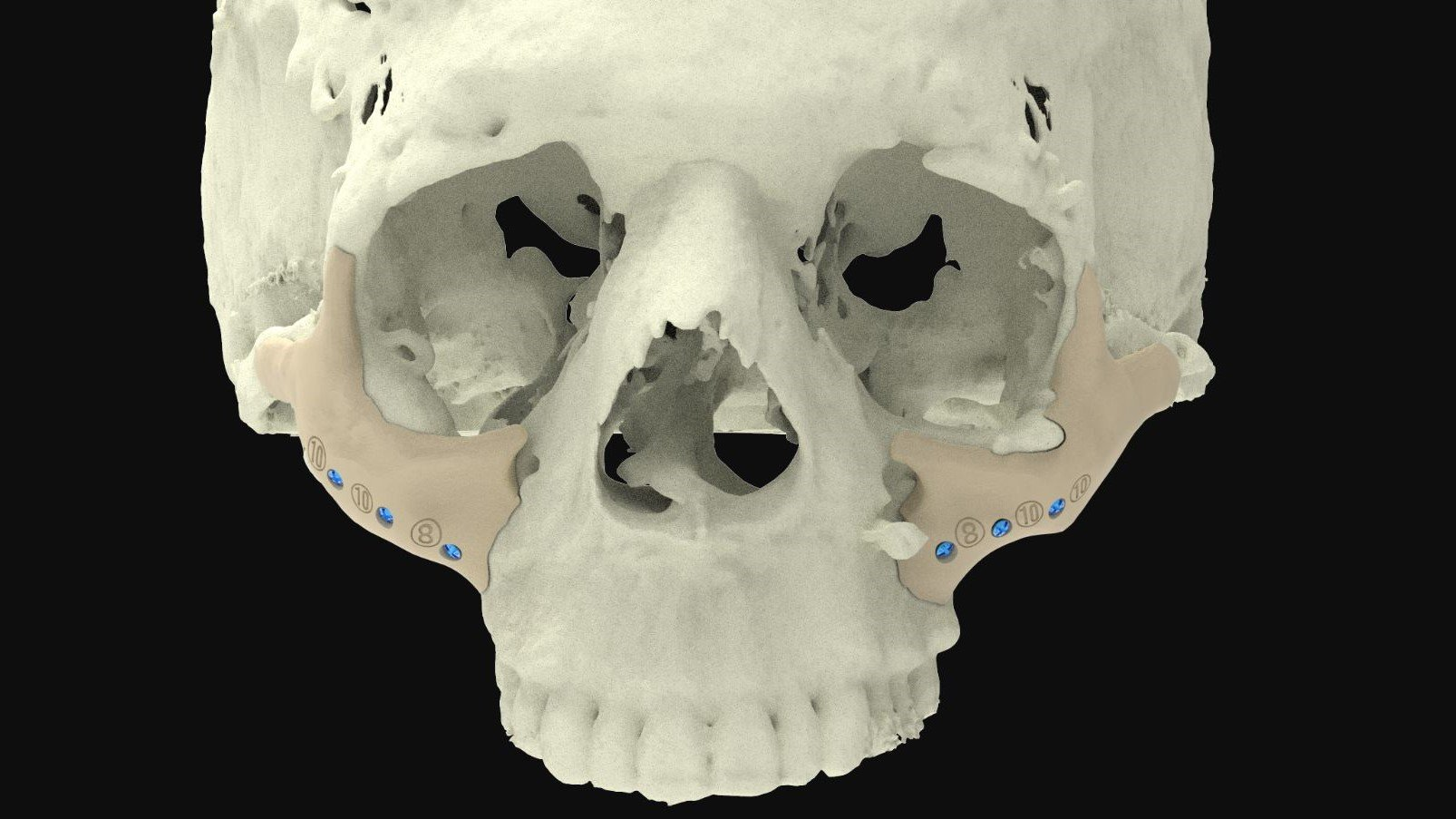 3D Printed Bones: The Most Jaw-Dropping Projects | All3DP