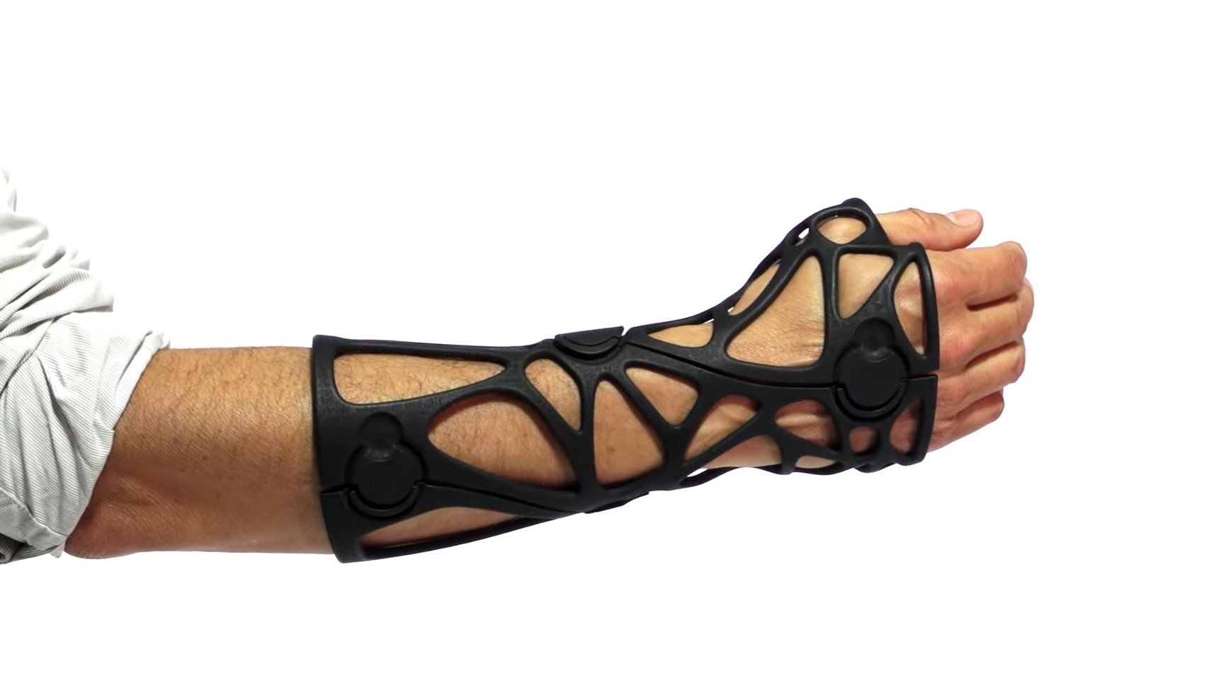 3D Printed Orthotics: 7 Most Promising Projects | All3DP